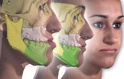 Chirurgia twarzy skan 3D.jpg
