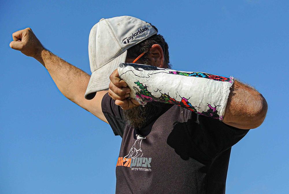 איש מניף ידיים בתנועת ניצחון עם גבס עם ציורים על היד