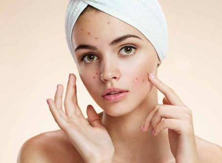 Clear Skin - Magic or more to it?