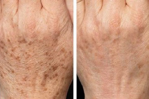 Hand spot removal
