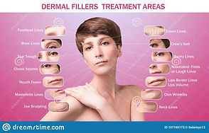 treatment-areas-anti-wrinkle-injection-y