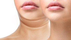 A One-Of-A-Kind Approach to a Double Chin Concern