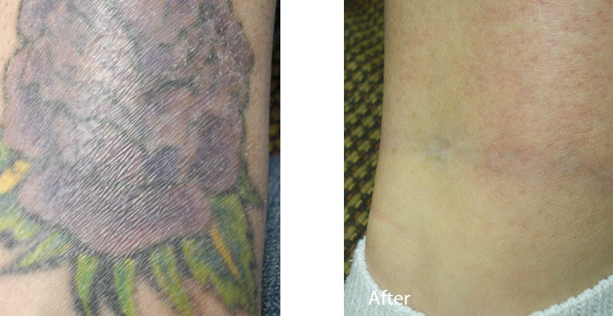 Spectra_Medermis_Tattoo_ankle_color1_bef
