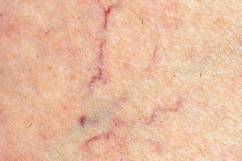 Spider vein treatment