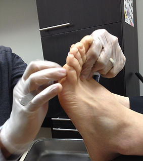 callus, corns, corn, removal, foot care, chiropodist, podiatrist, chiropody, nail cutting, toronto, scarborough, pickering, diabetic, senior, doctor, foot, foot care in scarborough, foot care in ajax, foot care in toronto, footcare in scarborough, diabetic