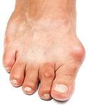 Bunions, bunions foot pain toronto, foot pain