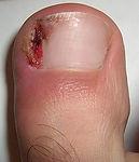 Ingrown toenails, Ingrown toenail surgery, nail surgery