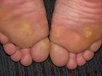 Nail Care, Corns, Callus, Diabetic Foot Care, medical pedicure