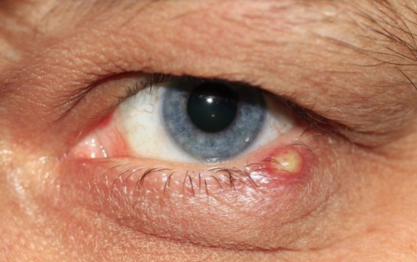 Homme avec un symptôme des infections oculaires