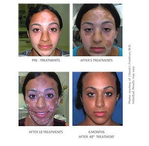 4-face-results.jpg