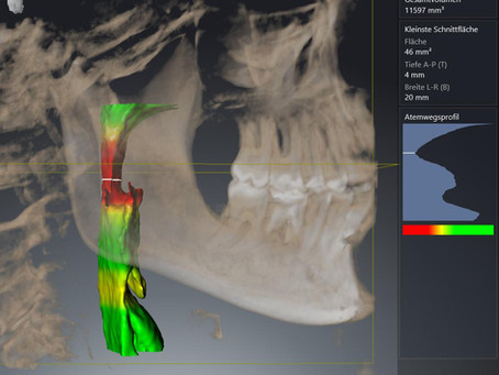 Atemwegsfokussierte Zahnmedizin