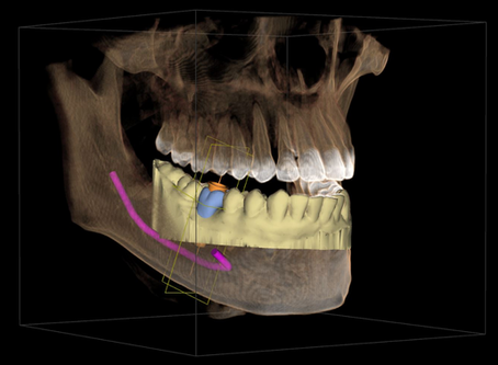 Integrierte Implantatplanung