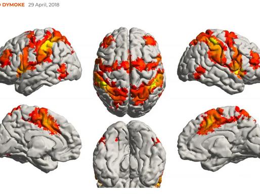Studie: Erinnerungen an Musik können nicht durch Alzheimer und Demenz verloren gehen.