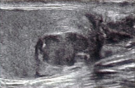 Ultrasound testis confirming a testicular tumour.