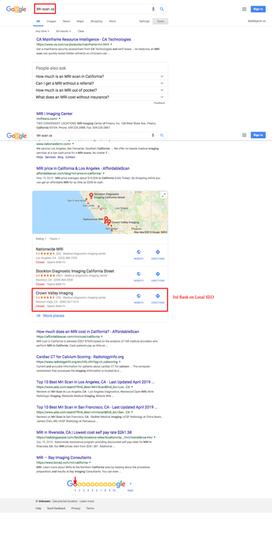 Mri scan ca   Google Search.png