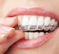 Wearing Clear Aligners - Invisalign (1).