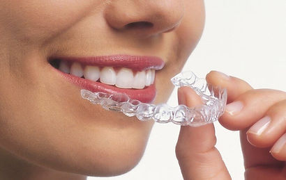 How long do I need to wear my retainers for?