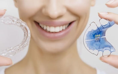 Get Removable Retainers | Days to Smile | San Francisco
