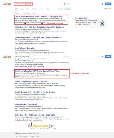 dexa scan orange county   Google Search.
