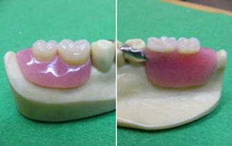 コーヌクローネの義歯の模型