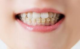 歯列矯正器具装着の女性の口元