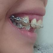 出っ歯の方の歯列矯正器具装着