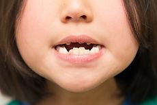 女の子の歯並び