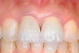 メタルボンド治療後の歯