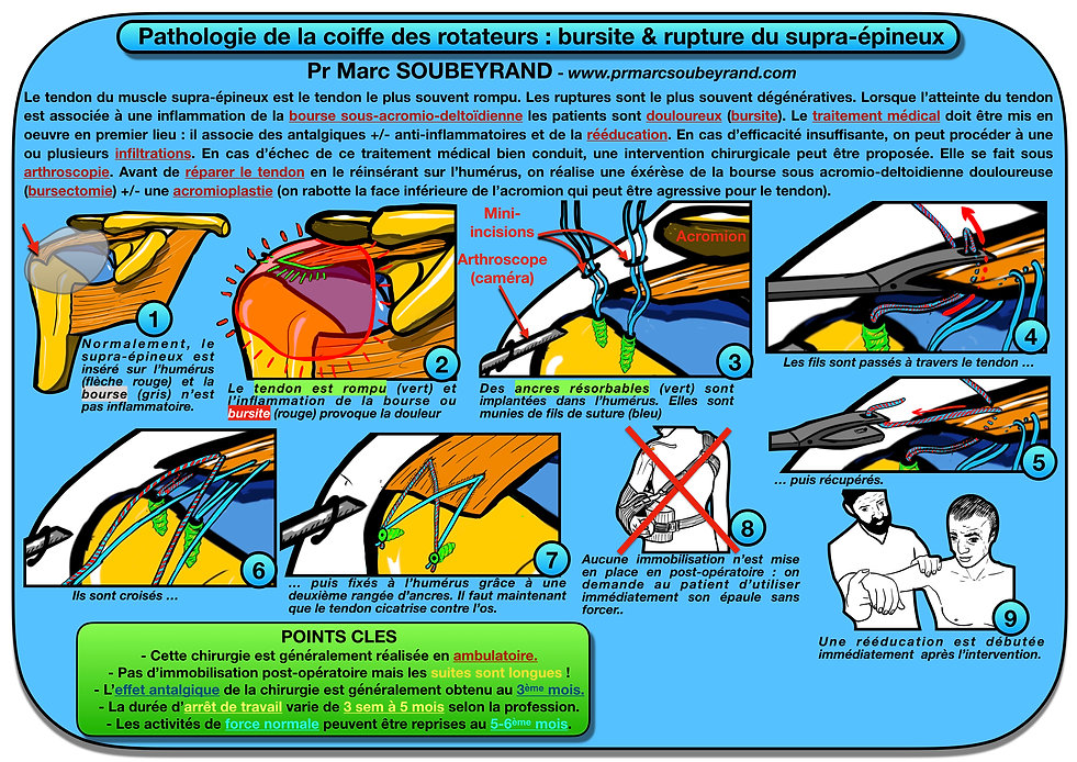 BULLETIN ORTHOPEDIQUE 001.001.jpeg