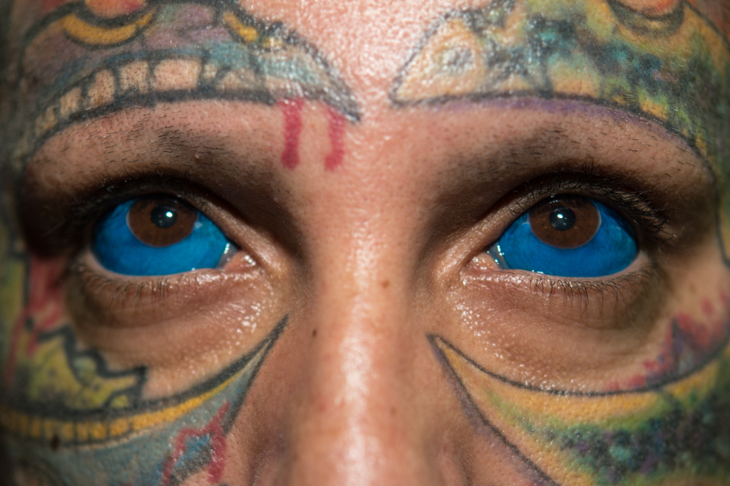Eyeball Tattoo Could Cause Blindness