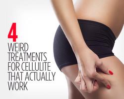 4 Tretments For Cellulites