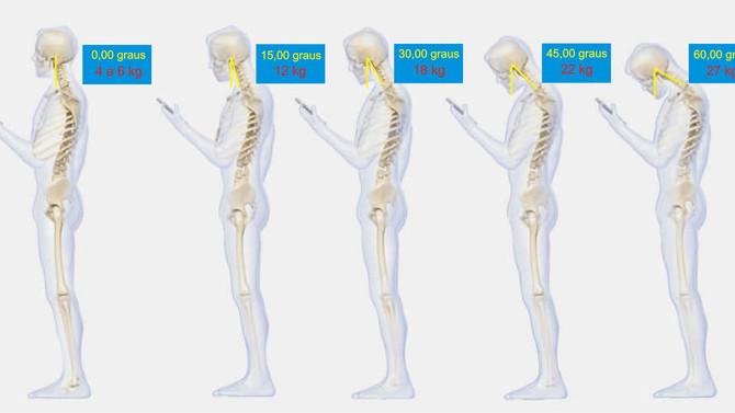 Pesquisa alerta: postura inadequada ao usar o celular pode gerar dor cervical