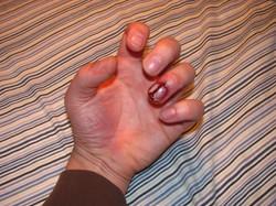 broken_nail_by_victorianspectre-d67mroa.jpg