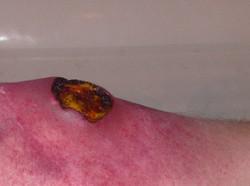infected_wound_close_up_by_victorianspectre-d6qrijz.jpg