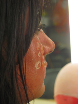 second_degree_burn_blisters_by_victorianspectre-d67lmj5.jpg