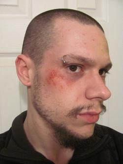 bruising__minor_abraision_by_victorianspectre-d683usy.jpg