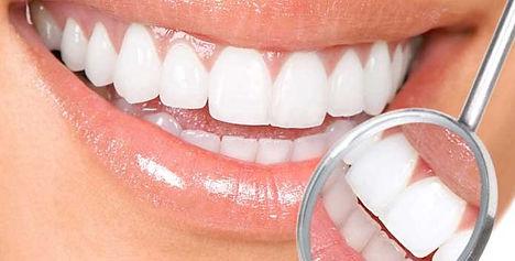 Clareamento dental - uma ótima maneira de recuperar a autoestima e ter um sorriso perfeito!!!