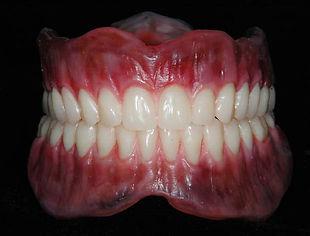 """São aparelhos destinados a repor todos os dentes perdidos em uma arcada. As chamadas """"dentaduras"""" tem hoje em dia uma estética bem melhorada, com a possibilidade de caracterizações gengivais (realizadas no acrílico – parte rosa) e o uso de dentes mais duráveis e com melhor estética ( dentes pré-fabricadosrecentes)."""