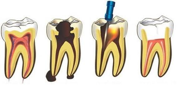O tratamento do canal (endodontia) consiste na retirada da polpa do dente, que é um tecido encontrado em sua parte interna. Se a polpa dentária estiverdanificada, infeccionada ou morta deverá ser removida e o espaço resultante ser limpo, preparado e preenchido.