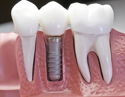 Ancorada em um único pino de implante, esta prótese devolve forma, função e estética. Confeccionada quase que na totalidade dos casos em material cerâmico.