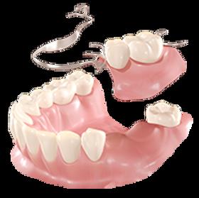 Estas próteses são compostas por uma estrutura metálica e dentes acrílicos, podem suprir ausência de vários dentes ao mesmo tempo.
