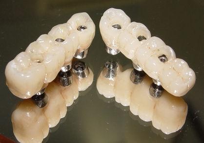 É uma prótese fixa adaptada sobre os pinos de implantes destinada a substituir uma pequena quantidade de dentes. Confeccionada usualmente em material cerâmico.