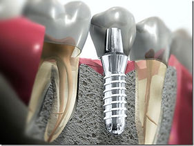 Os implantes dentários são dispositivos fabricados em titânio (material biocompatível) que, inseridos no osso maxilar ou mandibular, comportam-se como raízes dentárias, capazes de suportar um ou mais dentes artificiais.