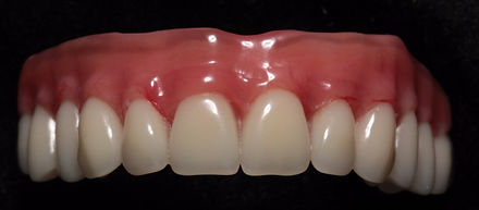 """Prótese Protocolo:      É uma prótese fixa instalada sobre pinos de implantes de todos os dentes. A principal vantagem é devolver a função mastigatória e permitir ao paciente o palato (""""céu da boca"""") livre. Pode ser confeccionada em material cerâmico ou acrílico."""