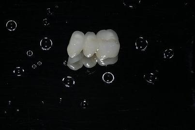 """Pontes fixas são dispositivos fixos cimentados (""""colados"""") em dentes existentes que se destinam a cobrir espaços em caso de ausência de um ou mais dentes. Essas próteses são apoiadas nos dentes vizinhos, que receberão desgastes, possibilitando assim o encaixe da peça única. Geralmente são confeccionadas em metalocerâmica ou """"metal free""""."""