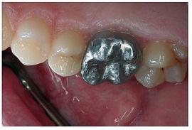 São capas destinadas a reconstruir a coroa natural dos dentes, devolvendo forma, função e cor. A estética proporcionada por este tratamento é muito similar aos dentes naturais.
