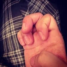 手の指の関節が曲がりにくい・・・