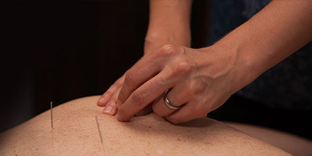 acupuncture-and-cupping.jpeg