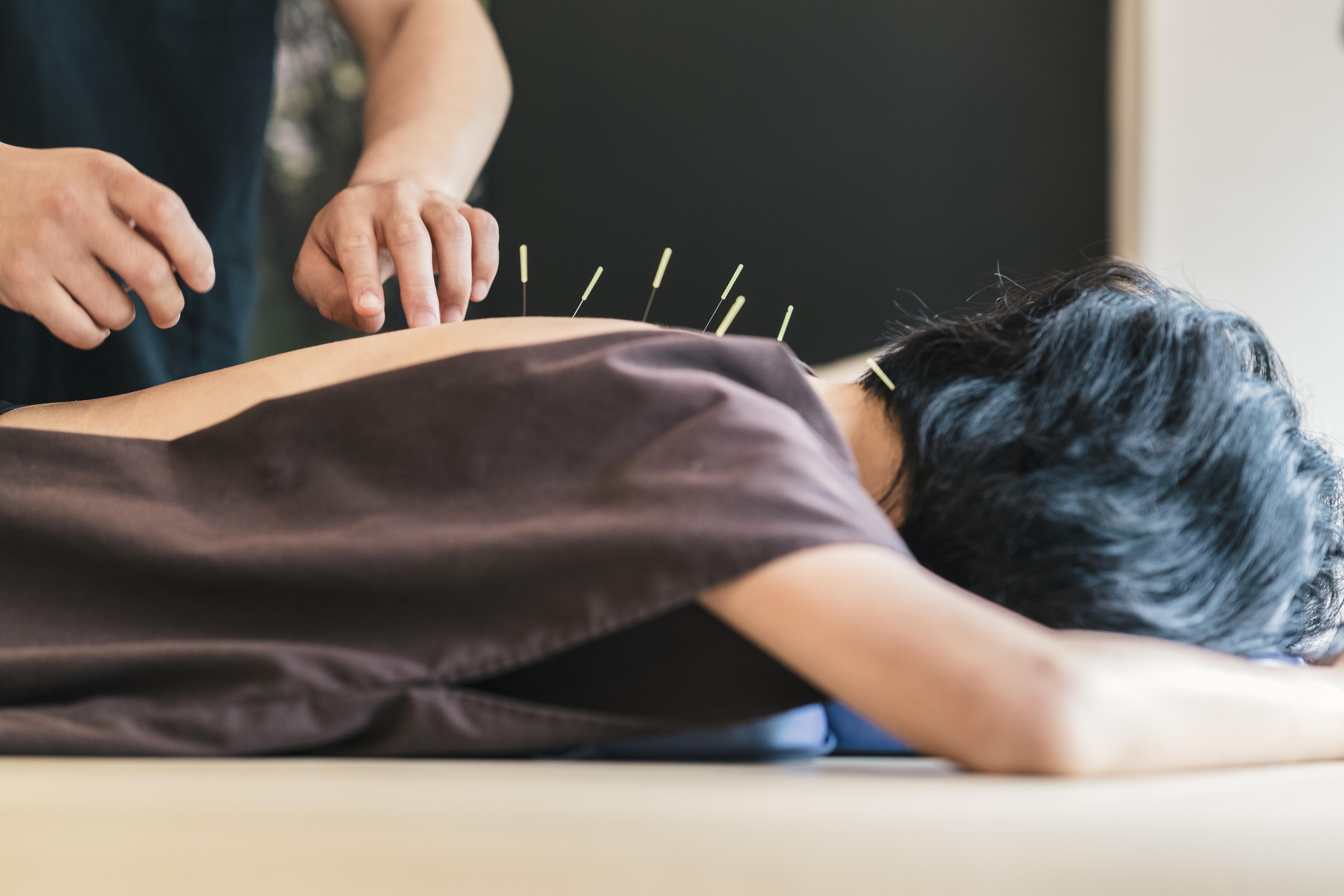 鍼灸治療(60分)