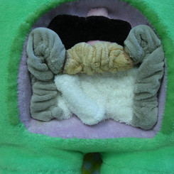 detachable section of large intestine, with diseased portion, exposable villi - custom order